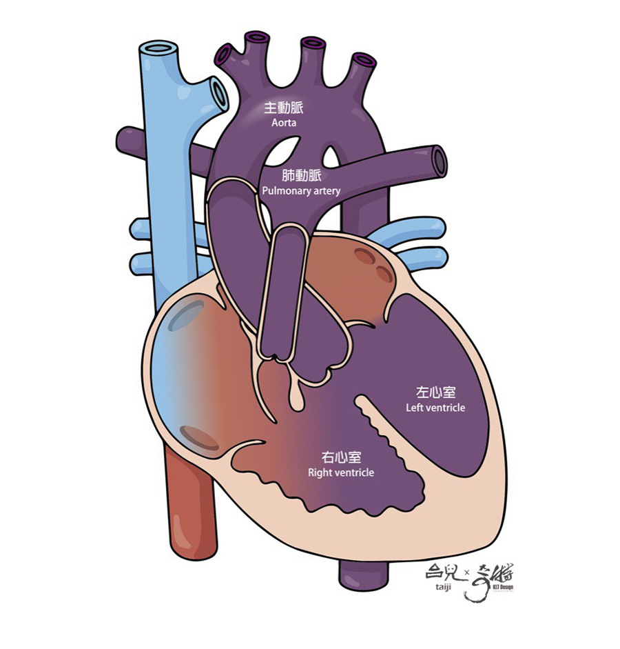 經早期胎兒結構篩檢後,小芬肚子裡的胎兒被檢查出疑似患有法洛氏四重症。(此病症包含四種心臟畸形:(1)心室中膈缺損(2)肺動脈狹窄(3)右心室肥厚以及(4)主動脈跨位)(圖片來源:台兒共筆3-圖解先天性心臟病‧從胎兒到小兒)